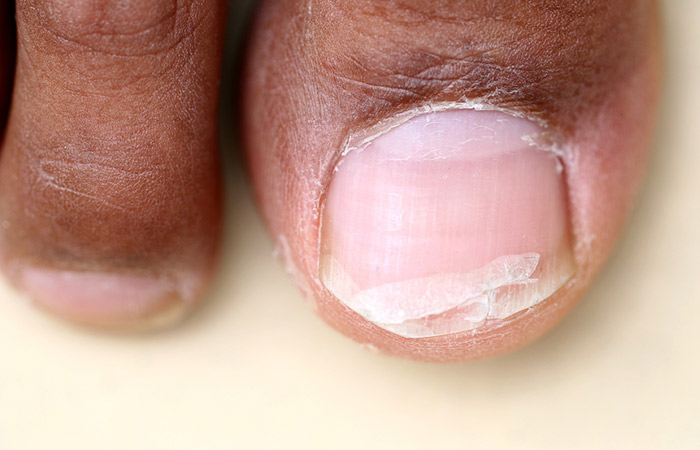 7. Hapalonychia (Soft Nails)
