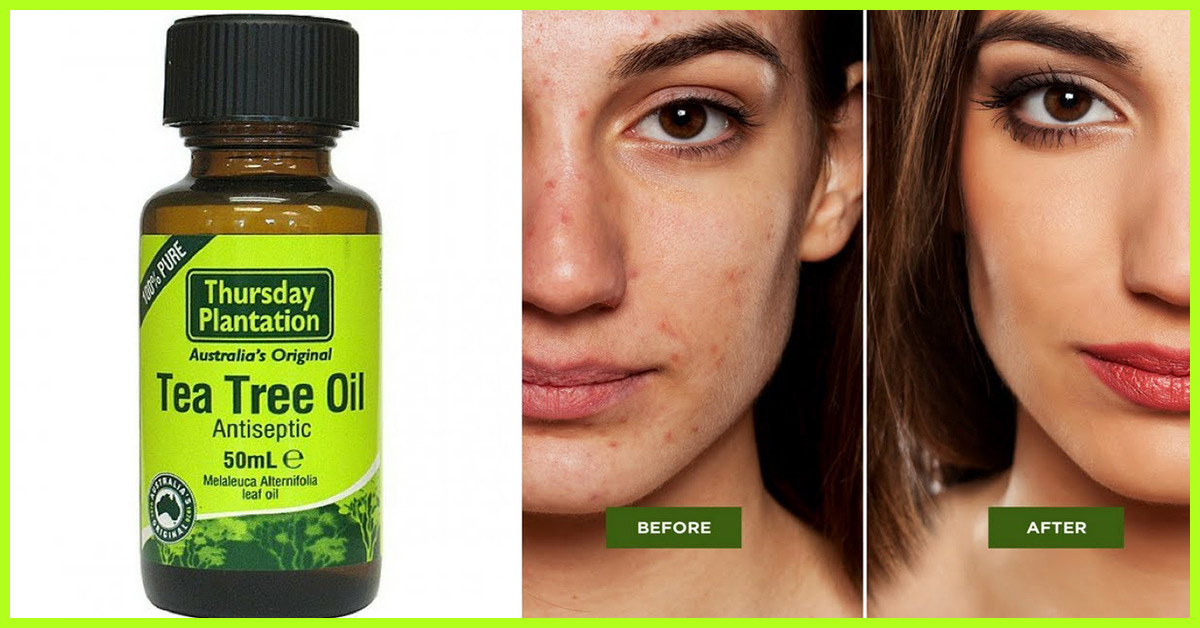 How To Use Tea Tree Oil For Acne – 9 Effective Ways