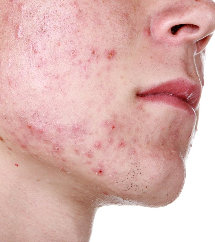 Adult-Acne-–-Types,-Causes,-Treamtment-And-Care