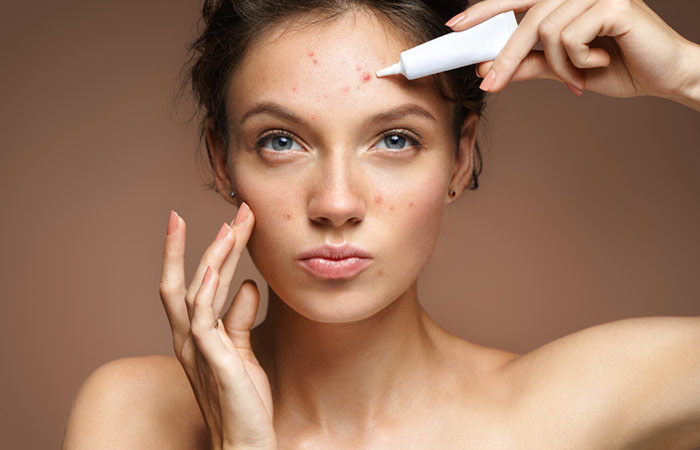 Adult Acne – Causes, Symptoms, And Treatments