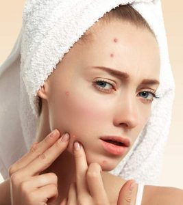 Best Acne Face Washes – Our Top 10