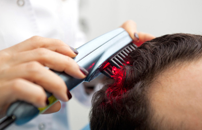 Laser Therapy For Hair Fall Control