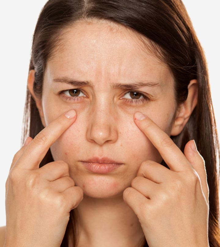 How To Treat Dark Circles Under Eyes: Causes, Home Remedies, And More