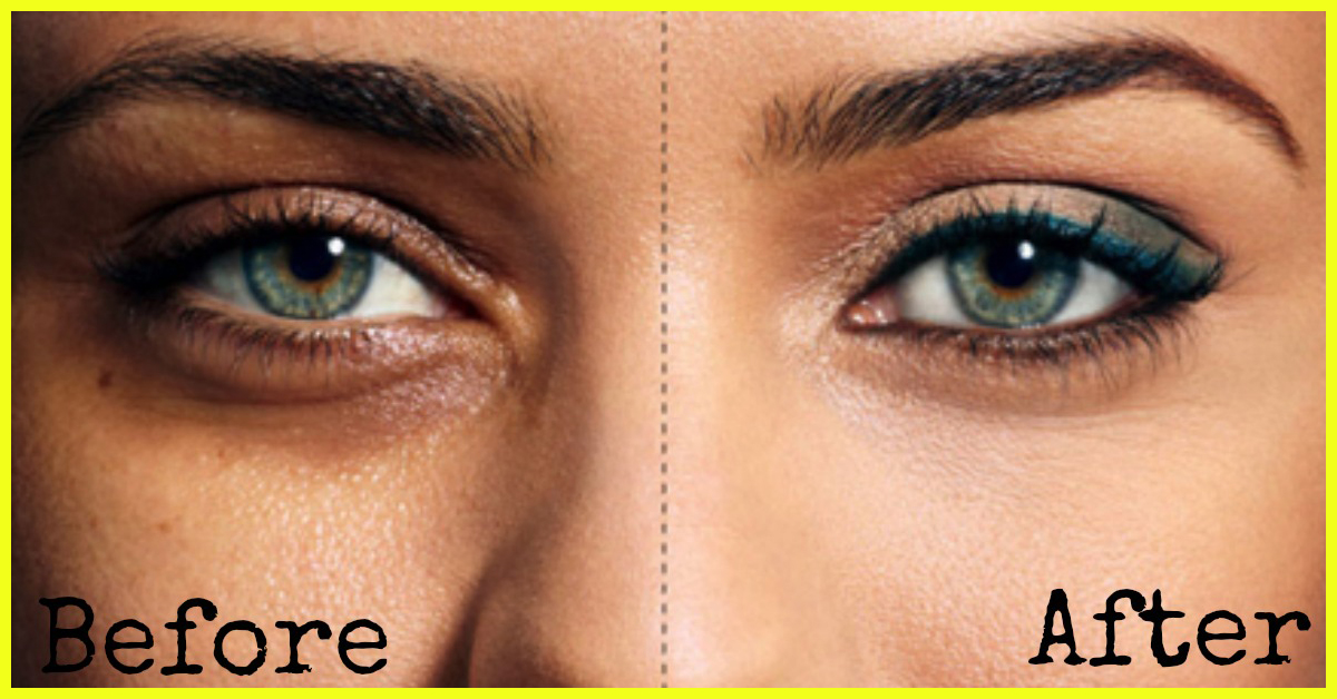 How To Reduce Black Circles Under Eyes Naturally