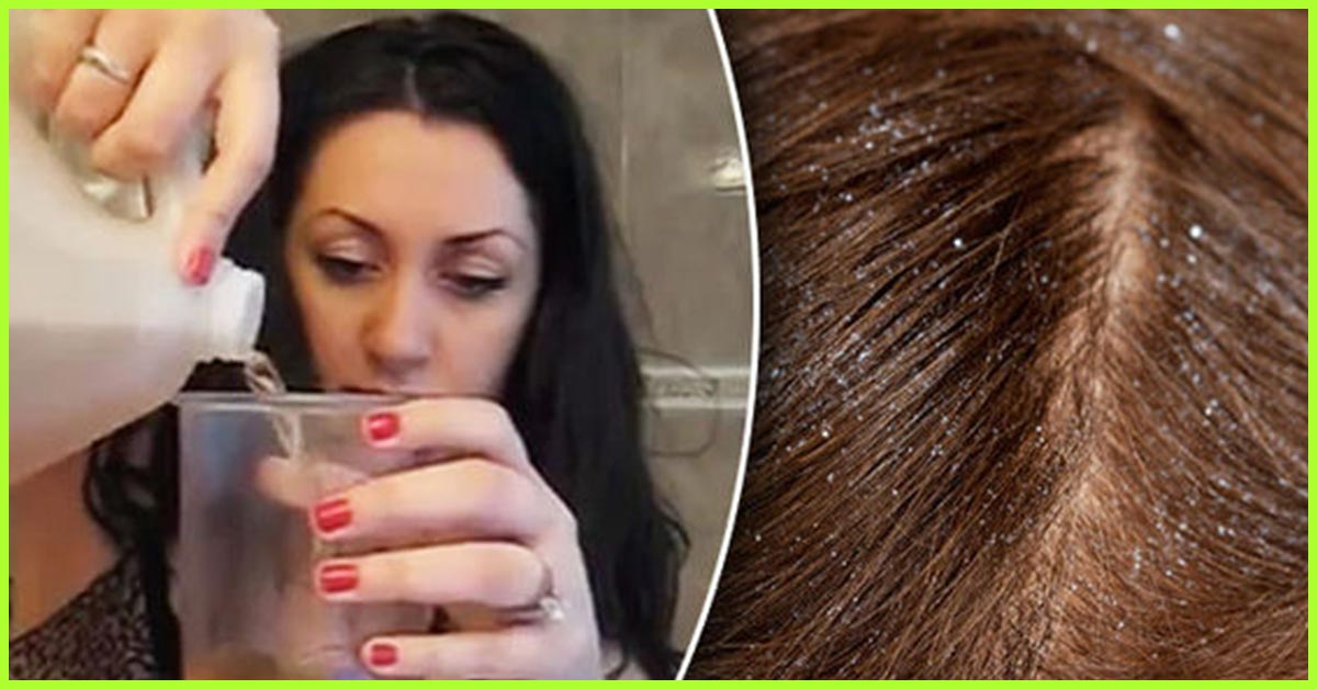 Image result for apple cider vinegar for dandruff""