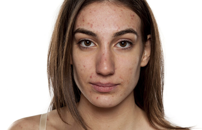 What Is Adult Acne And How Is It Different From Teenage Acne