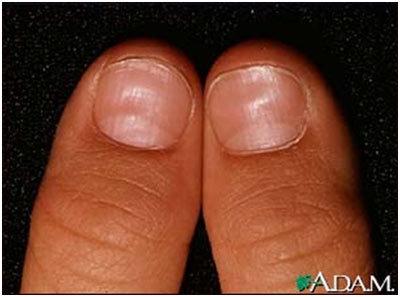 Iron Deficiency Nails Pinit