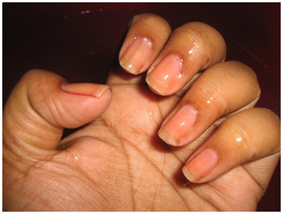 nails and cuticles