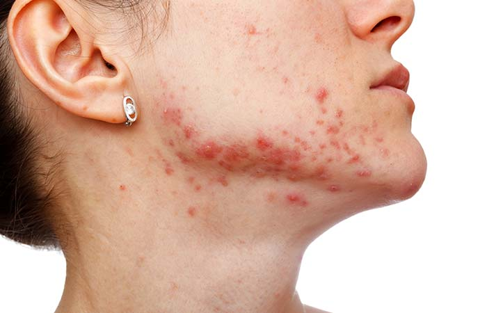 3. Effective Remedy For Skin Diseases And Wounds