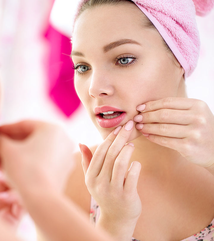 25 Best Anti-Acne And Pimple Treatments
