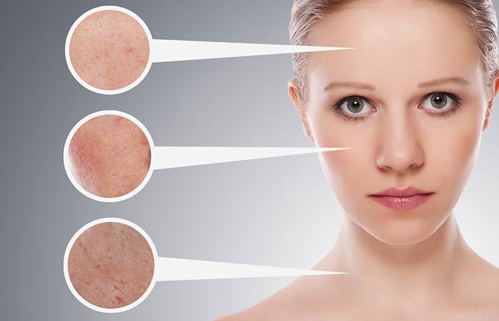17. Treats Skin Allergies