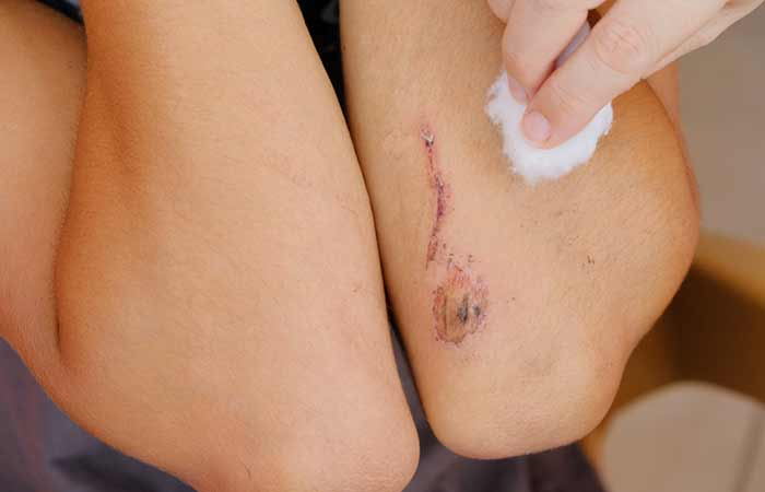 Calamine Lotion - Accelerates Wound Healing
