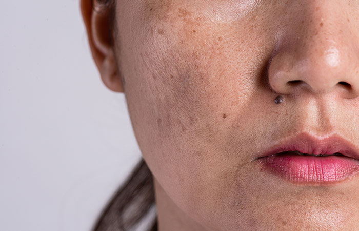 2. Controls Skin Pigmentation And Photoaging