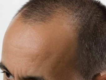 Image result for Easy methods to Pick The Best Hair Surgery Clinics in Bangalore