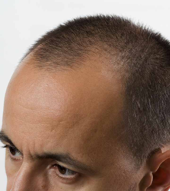 Best Hair Transplant Centers In Hyderabad - Our Top 10