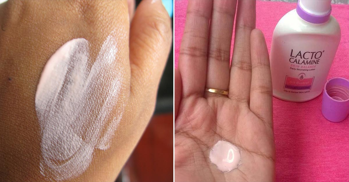 21 Amazing Benefits Of Calamine Lotion - How To Use It The