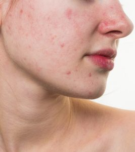 How To Get Rid Of Red Spots On The Skin: 6 Home Remedies And Tips