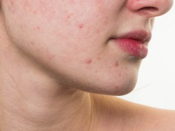 How To Get Rid Of Red Spots On The Skin 6 Home Remedies And Tips
