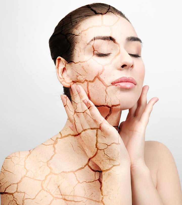 How To Use Multani Mitti For Dry Skin