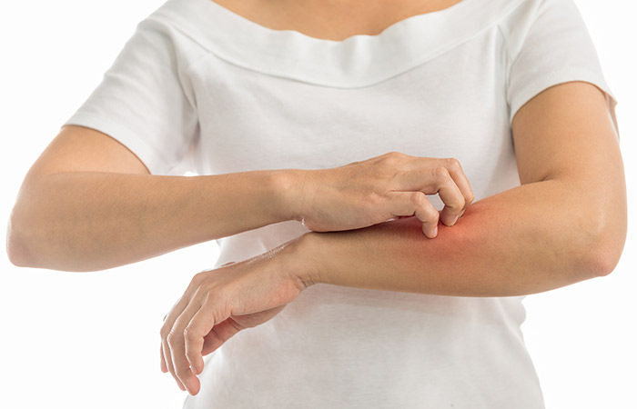 Vitamin E Oil And Coconut Oil For Itchy Skin