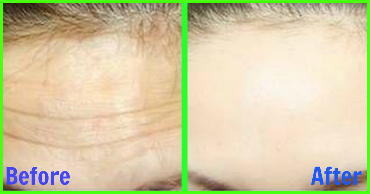 10 Simple Ways To Get Rid Of Forehead Wrinkles At Home