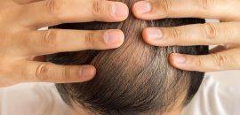 Top 10 Hair Transplantation Centers In Delhi