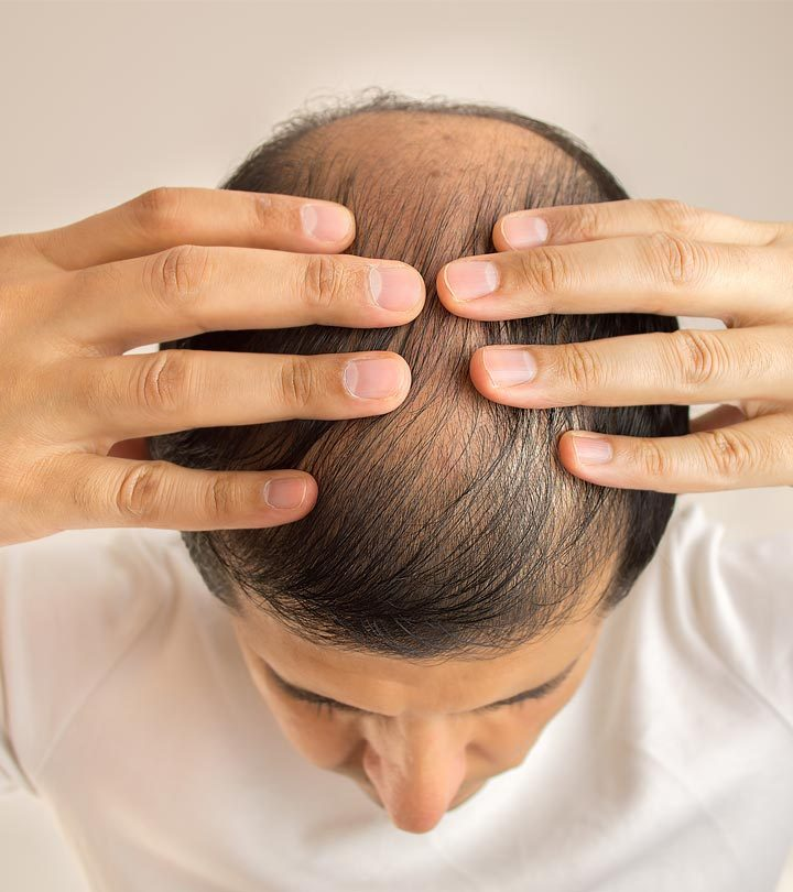 Top 10 Hair Transplantation Centers In Delhi