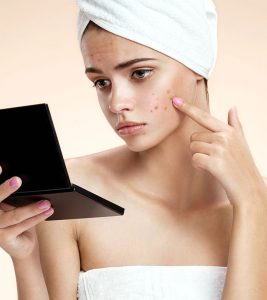 How To Get Rid Of Pimples (Acne) Overnight Fast