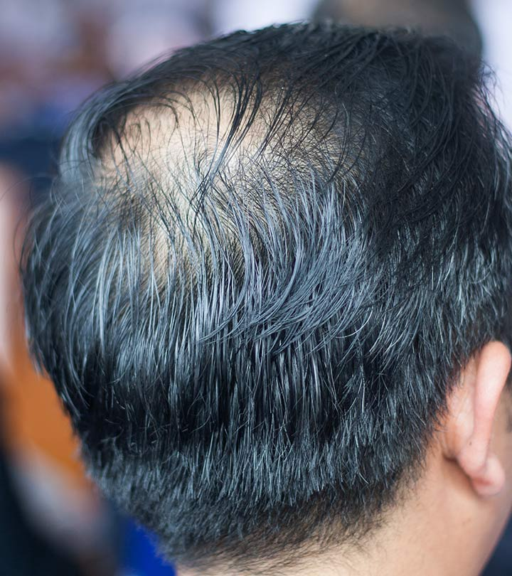 Top 10 Hair Transplantation Centers In Kolkata