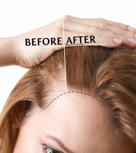 Top 10 Hair Transplant Centers In Lucknow