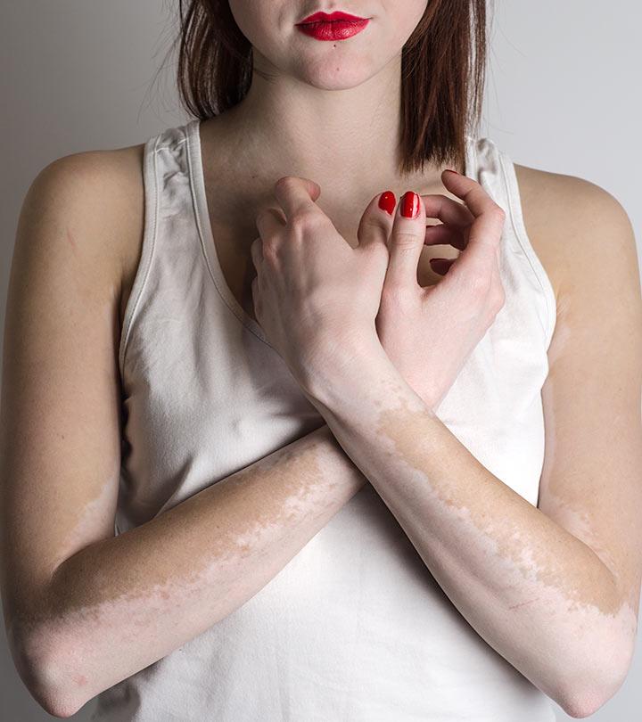 21 Natural Ways To Get Rid Of White Spots On Skin Vitiligo