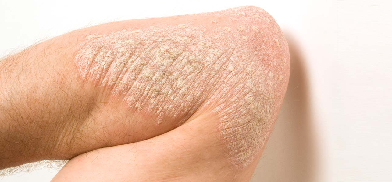 Here's how you can spot the 7 types of psoriasis 1