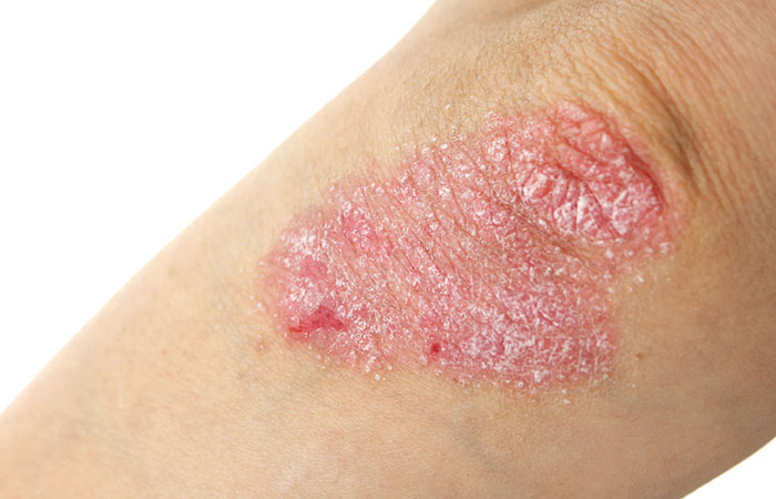 5. Bath Salts For Psoriasis
