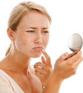Cold Sore Vs. Pimple: Causes, Symptoms, And Treatment