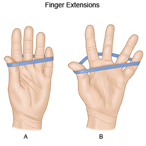 Tennis Elbow Exercises - Finger Extension