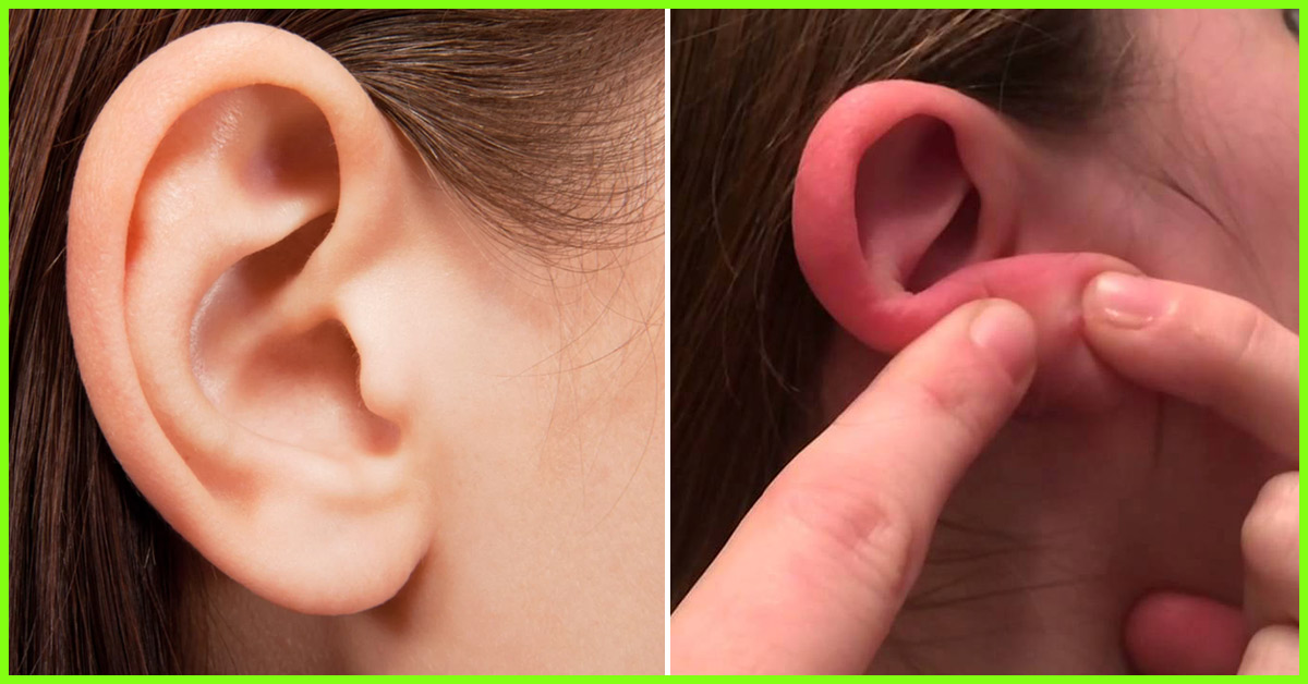 Pimples Behind Ears Causes Home Remedies And Prevention Tips