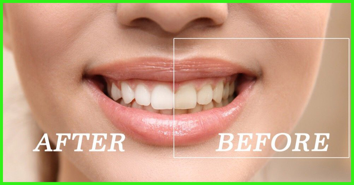 Simple Ways To Whiten Teeth Home Remedies And Tips