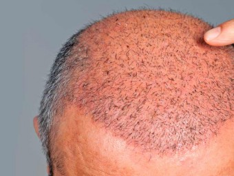 Top 10 Hair Transplantation Centers In Pune