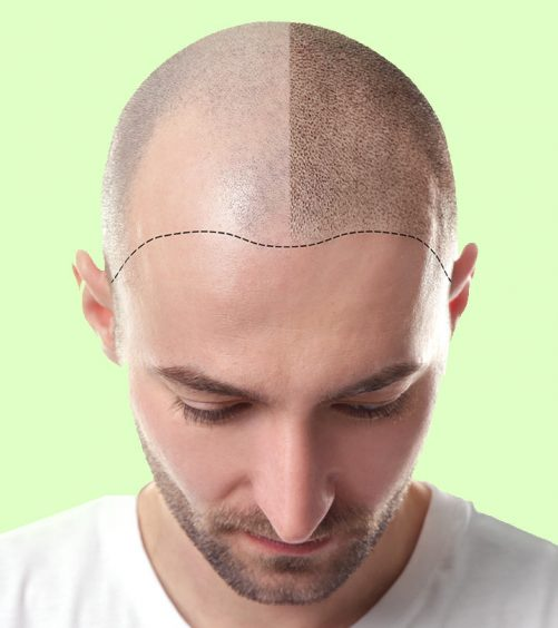 Top-10-Hair-Transplantation-Centers-In-Punjab