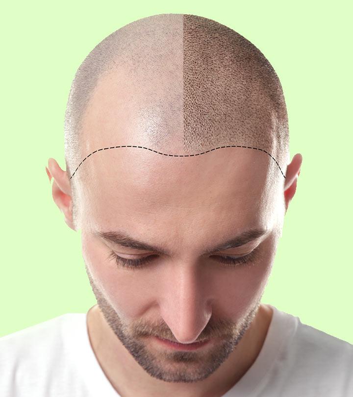 Best Hair Transplant In Dubai Fut Fue