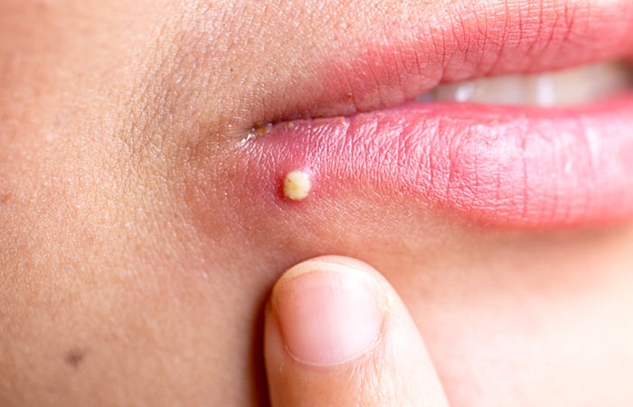 Ways To Treat Pimples On the Lips