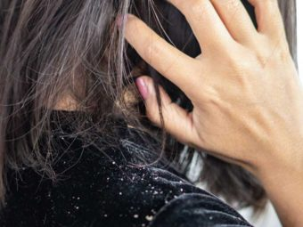 What Is The Truth About Hair Oils For Dandruff