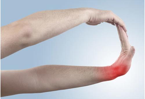 Exercises For Tennis Elbows - Wrist Flex