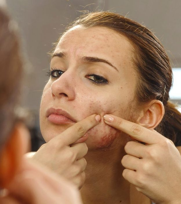 5 Simple But Very Effective Acne Vulgaris Treatments