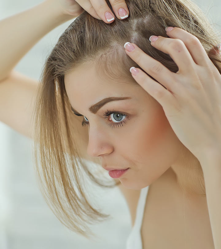 Women Also Have Baldness To Remove Baldness Follow These