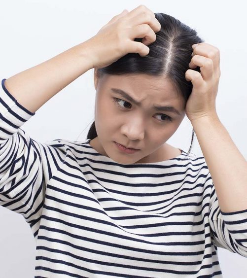Wet Dandruff - What Is It And How To Treat It?