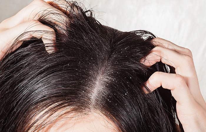 Clears Dandruff And Scalp Issues