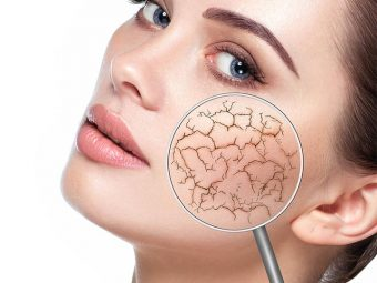 Diet For Dry Skin - 15 Best Foods That Lock Moisture Naturally