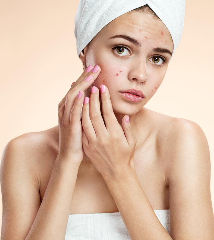 Different Types Of Acne And How To Treat Them Effectively