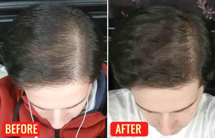 Emu Oil For Hair Loss – Reviews-1